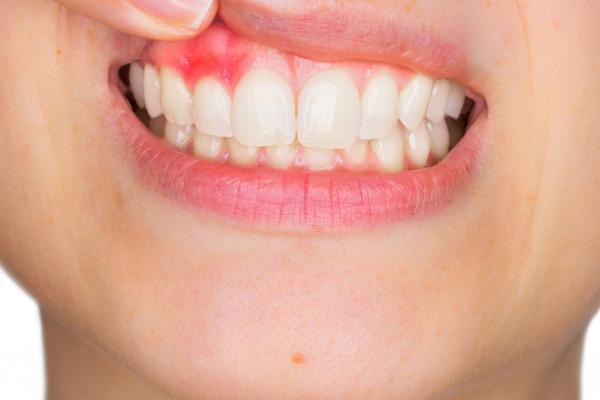 Ontstoken tandvlees: wat doe je eraan?